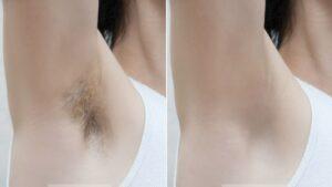 إزالة شعر الإبط بالليزر