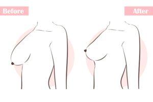 شد الثدي قبل وبعد