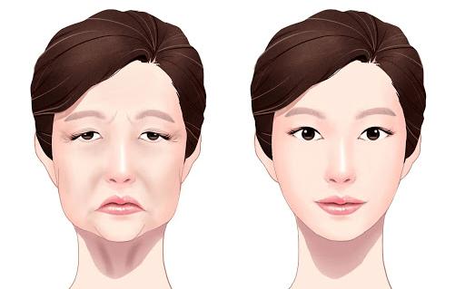 عمليات شد الوجه