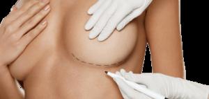 عملية شد الثدي