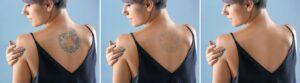 مراحل إزالة الوشم