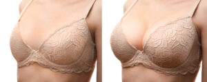 عملية تبديل حشوات الثدي قبلها وبعدها