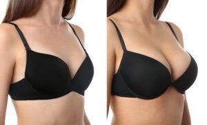 تبديل حشوات الثدي قبل وبعد