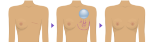 ترميم الثدي قبل وبعد