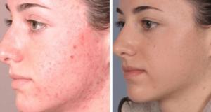 تقشير الجلد قبل وبعد