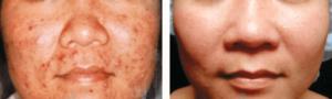 تقشير الجلد قبل وبعد (1) 