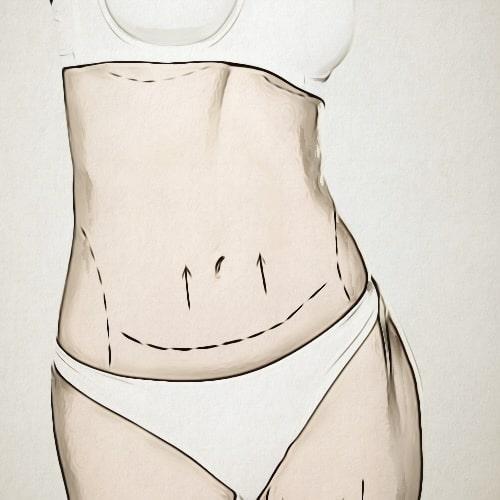 نحت الجسم بدون جراحة