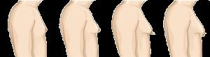 درجات التثدي عند الذكور