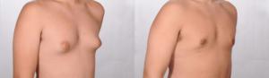 تصغير الثدي قبل وبعد