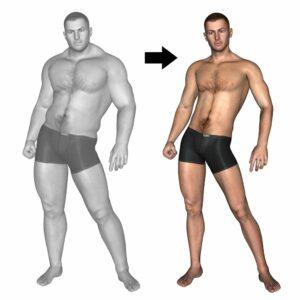 شفط الدهون قبل وبعد