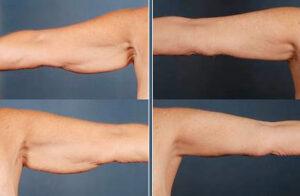 نتائج عملية نحت الذراعين عند الرجال