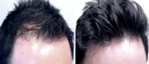 فيلر الشعر قبل وبعد