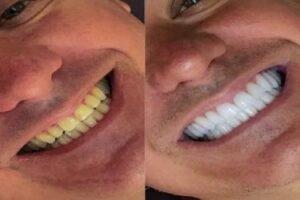 قبل وبعد ابتسامة هوليود