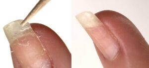 نتائج علاج تشقق الأظافر