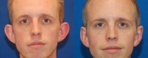 نتائج عملية تصغير الأذن