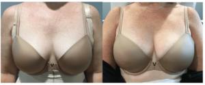 شد الثدي بالليزر قبل وبعد