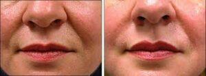 كولاجين الوجه قبل وبعد