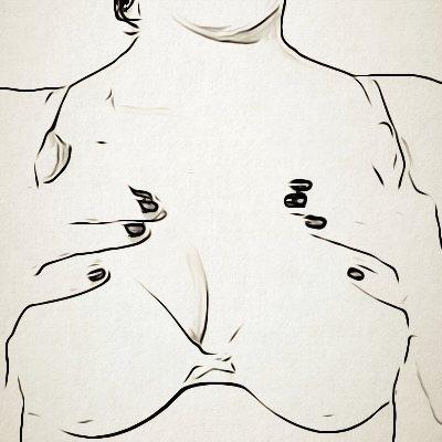 زرع حشوات الثدي