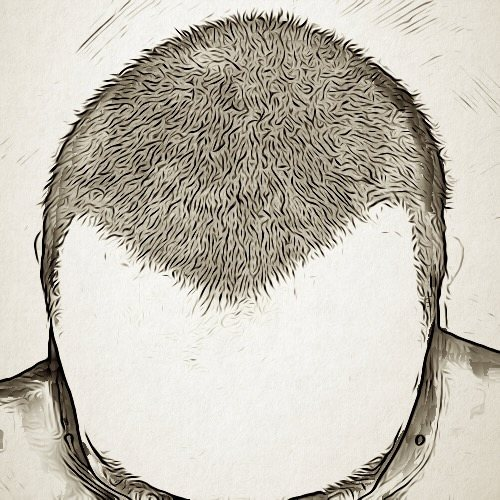 زراعة الشعر بتقنية الشريحة