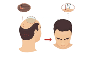 طريقة زرع الشعر بتقنية الشريحة