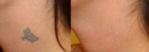 قبل وبعد إزالة الوشم بدون جراحة