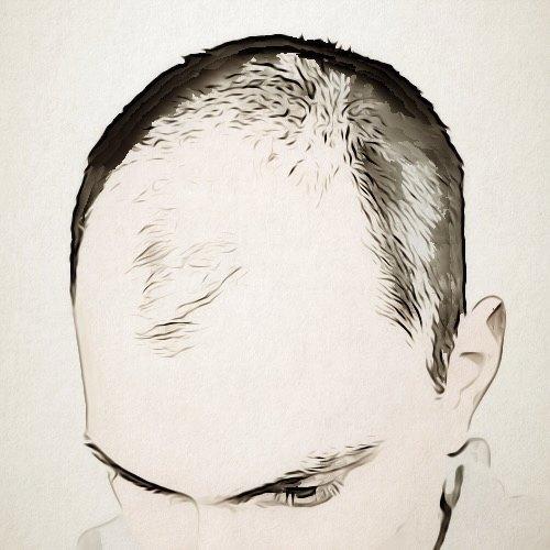 ما الفرق بين زراعة الشعر بتقنية الشريحة وزراعة الشعر بتقنية الاقتطاف؟