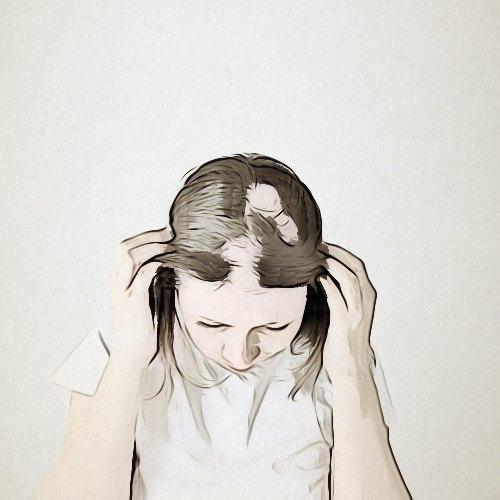 ما مخاطر عملية زراعة الشعر؟