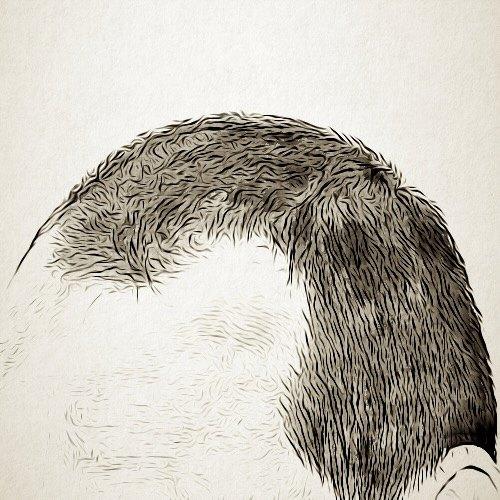 ما هي الحالات التي لا يمكن فيها زراعة الشعر؟
