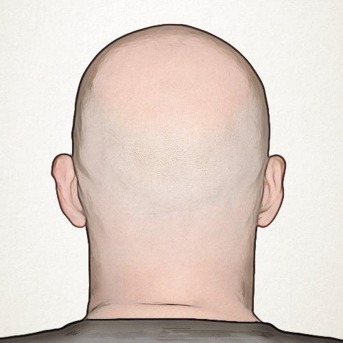 متى تظهر نتائج عملية زراعة الشعر؟