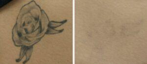 نتائج إزالة الوشم بدون جراحة