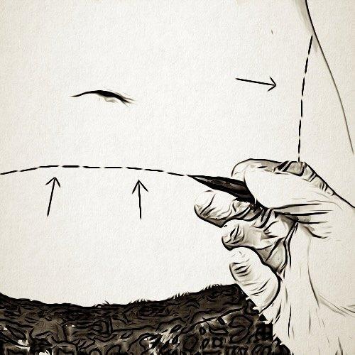 هل تؤثر عملية شد البطن على إمكانية الحمل مستقبلًا؟