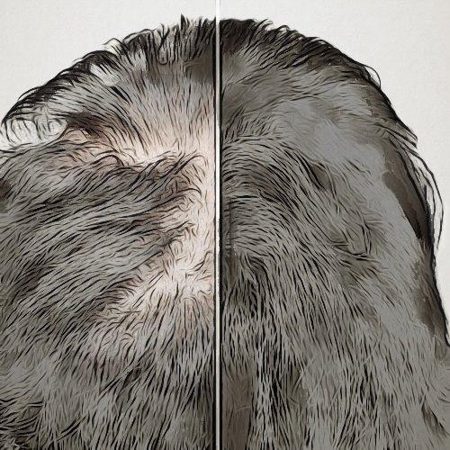 هل تنجح عملية زراعة الشعر عند النساء؟