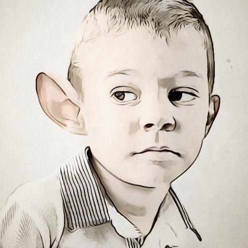 هل يمكن إجراء عمليات تجميل الأذن عند الأطفال؟