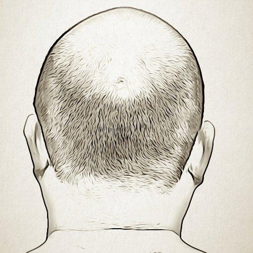هناك اختلاف بين طبيعة الشعر المزروع والشعر الحقيقي؟