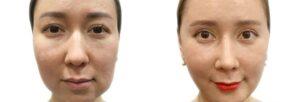 عملية شد الوجه بالخيوط الكورية قبل وبعد