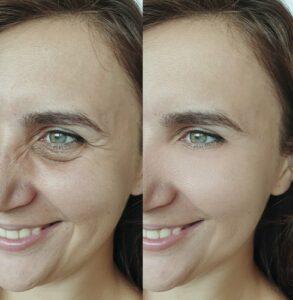 نتائج عملية شد الوجه بالخيوط الكورية